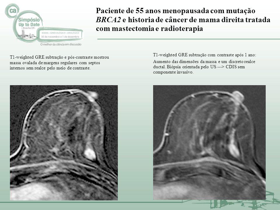 Paciente de 55 anos menopausada com mutação BRCA2 e historia de câncer de mama direita tratada com mastectomia e radioterapia T1-weighted GRE subtraçã