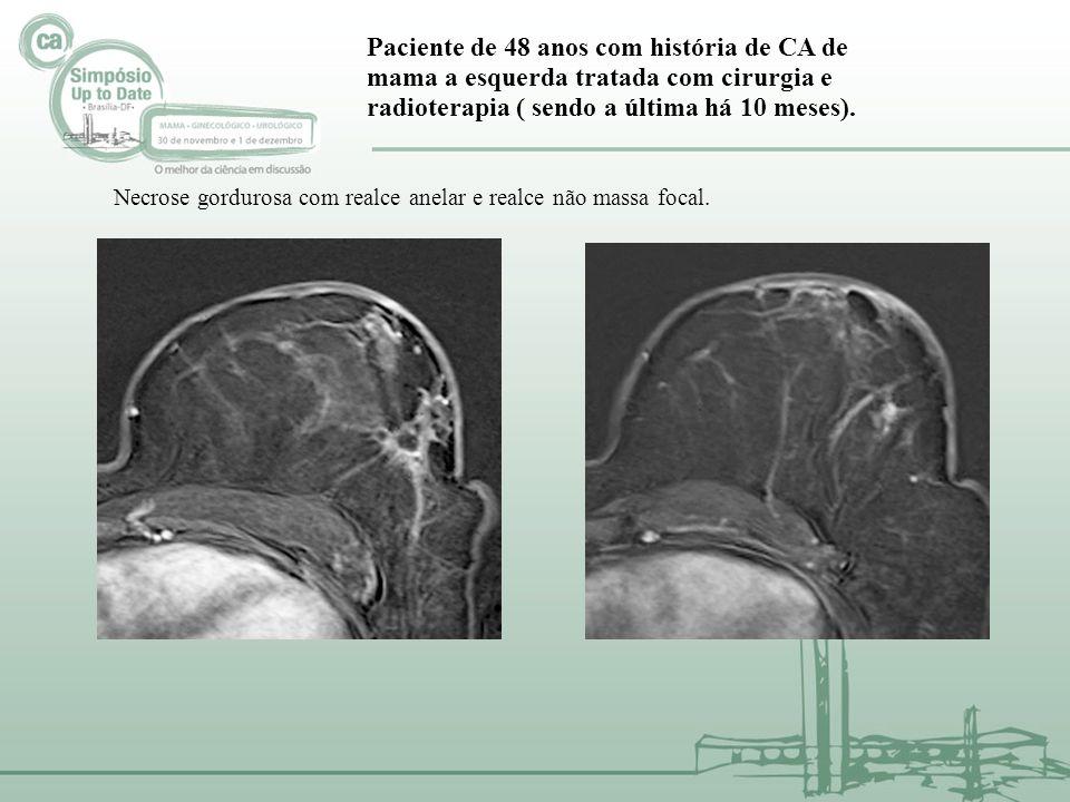Paciente de 48 anos com história de CA de mama a esquerda tratada com cirurgia e radioterapia ( sendo a última há 10 meses). Necrose gordurosa com rea