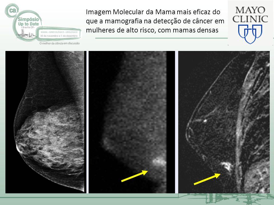 Imagem Molecular da Mama mais eficaz do que a mamografia na detecção de câncer em mulheres de alto risco, com mamas densas
