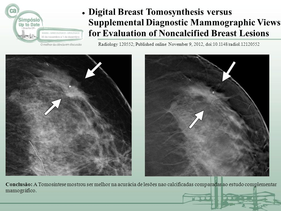 Digital Breast Tomosynthesis versus Supplemental Diagnostic Mammographic Views for Evaluation of Noncalcified Breast Lesions Radiology 120552; Publish