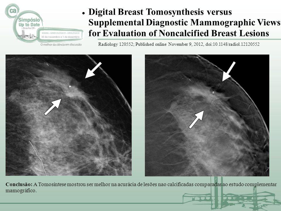 HOSPITAL SÍRIO LIBANÊS 835 MULHERES RASTREAMENTO ( 9 meses) TRABALHO PROSPECTIVO RASTREAMENTO MAMOGRÁFICO COM 2 D + TOMO (2 INCID) 40-69 anos = 709 casos (85%) TABELA 1: cânceres detectados na mamografia 2 D e mamografia 3 D ( tomossíntese), segundo o aspecto mamográfico AUMENTO NA DETECÇÃO DO CÂNCER EM 33% COM A TOMOSSÍNTESE