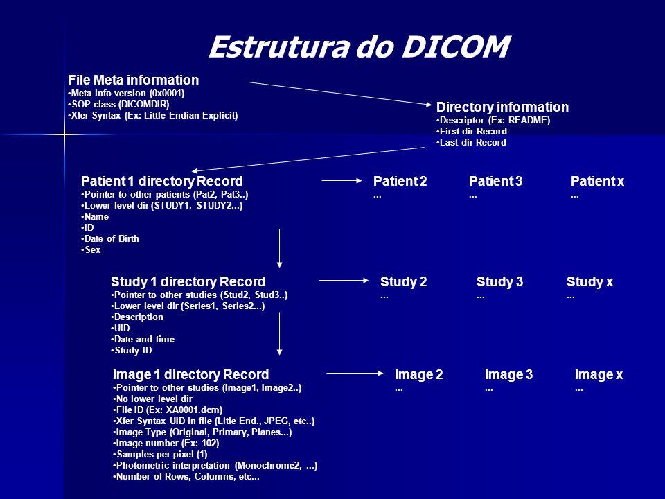 Estrutura do DICOM File Meta information Meta info version (0x0001) SOP class (DICOMDIR) Xfer Syntax (Ex: Little Endian Explicit) Directory informatio