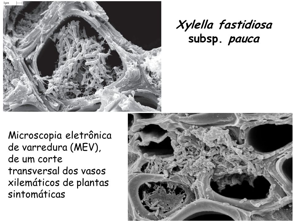 Estratégias para controle da CVC utilizando endófitos Curtobacterium inibi in vitro Xf (Lacava et al, 2004) Testado em planta modelo (Lacava et al, 2007) Próximos passos: testar em campo e em plantas de citros Controle Biológico ClássicoControle Simbiótico Curtobacterium (bactéria endofítica de citros) Methylobacterium (bactéria endofítica de citros) Methylobacterium coloniza tecido de planta e inseto vetor (Andreote et al, 2006 and Gai, 2006) Transformação de Methylobacterium (GFP) Próximos passos: produção de anti-Xylella efeitos