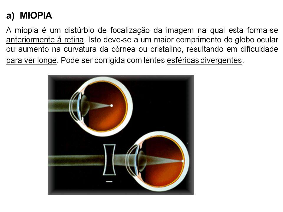 a) MIOPIA A miopia é um distúrbio de focalização da imagem na qual esta forma-se anteriormente à retina.