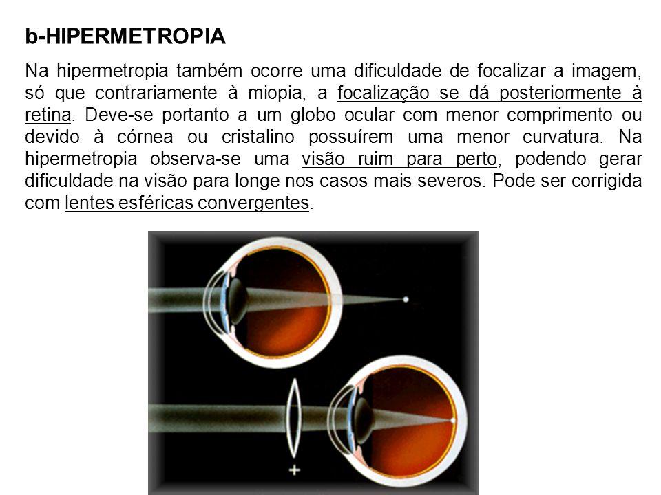 b-HIPERMETROPIA Na hipermetropia também ocorre uma dificuldade de focalizar a imagem, só que contrariamente à miopia, a focalização se dá posteriormente à retina.