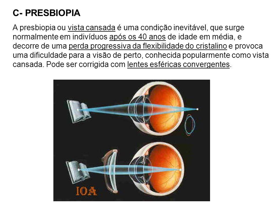 C- PRESBIOPIA A presbiopia ou vista cansada é uma condição inevitável, que surge normalmente em indivíduos após os 40 anos de idade em média, e decorre de uma perda progressiva da flexibilidade do cristalino e provoca uma dificuldade para a visão de perto, conhecida popularmente como vista cansada.