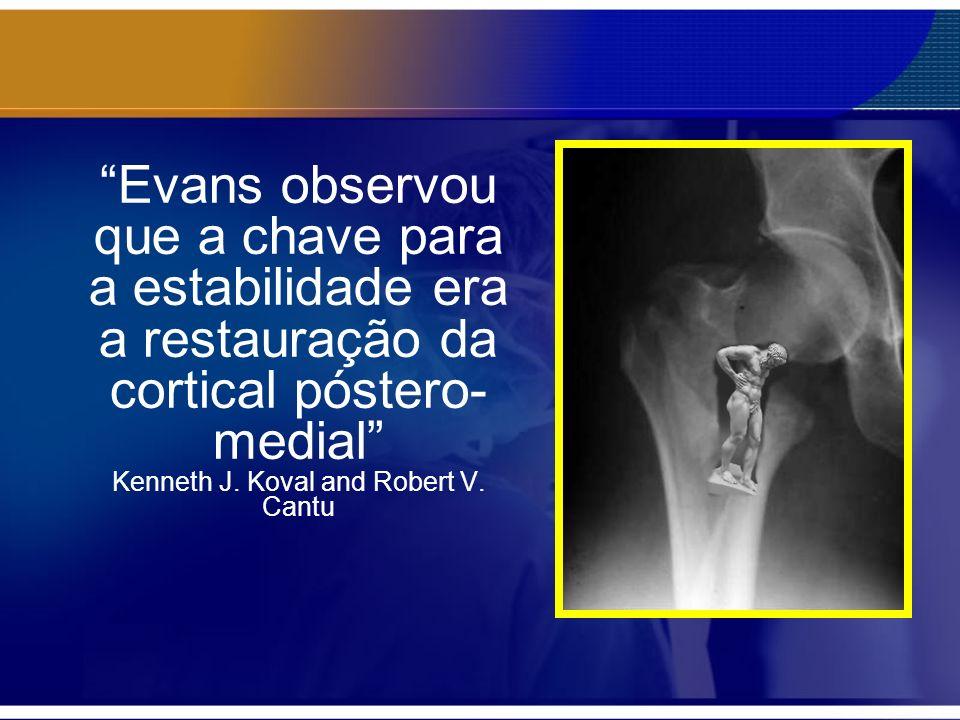 Evans observou que a chave para a estabilidade era a restauração da cortical póstero- medial Kenneth J. Koval and Robert V. Cantu