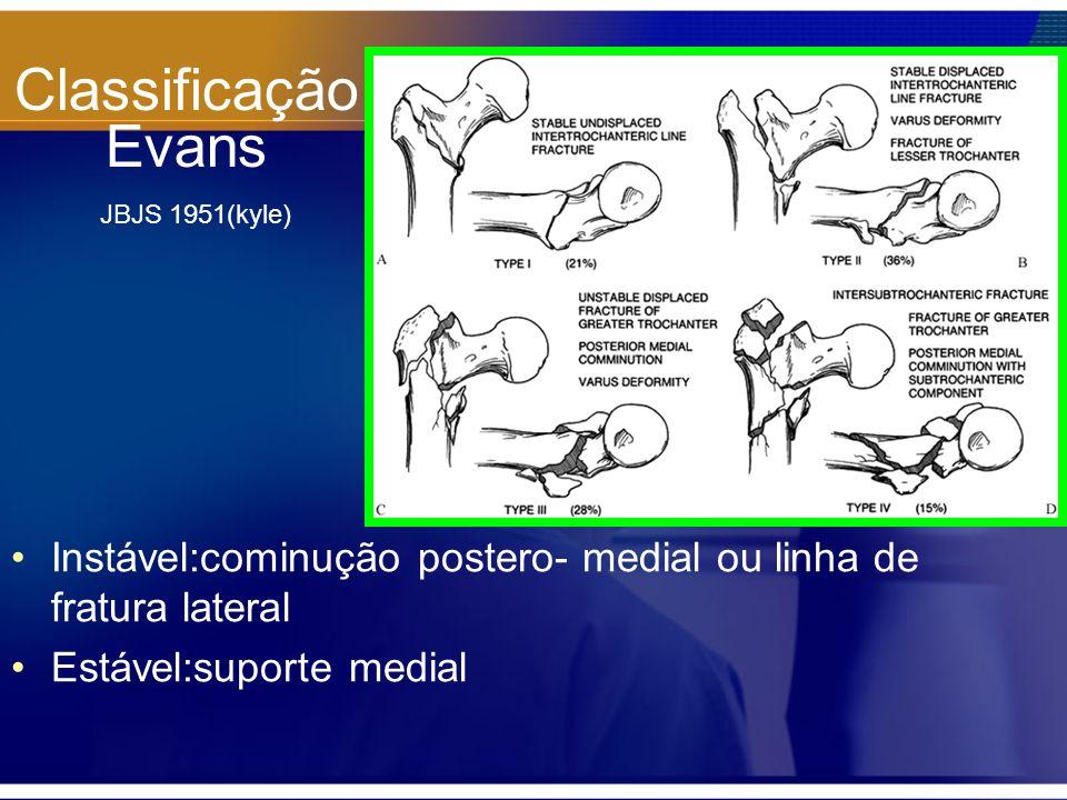 Classificação Evans JBJS 1951(kyle) Instável:cominução postero- medial ou linha de fratura lateral Estável:suporte medial