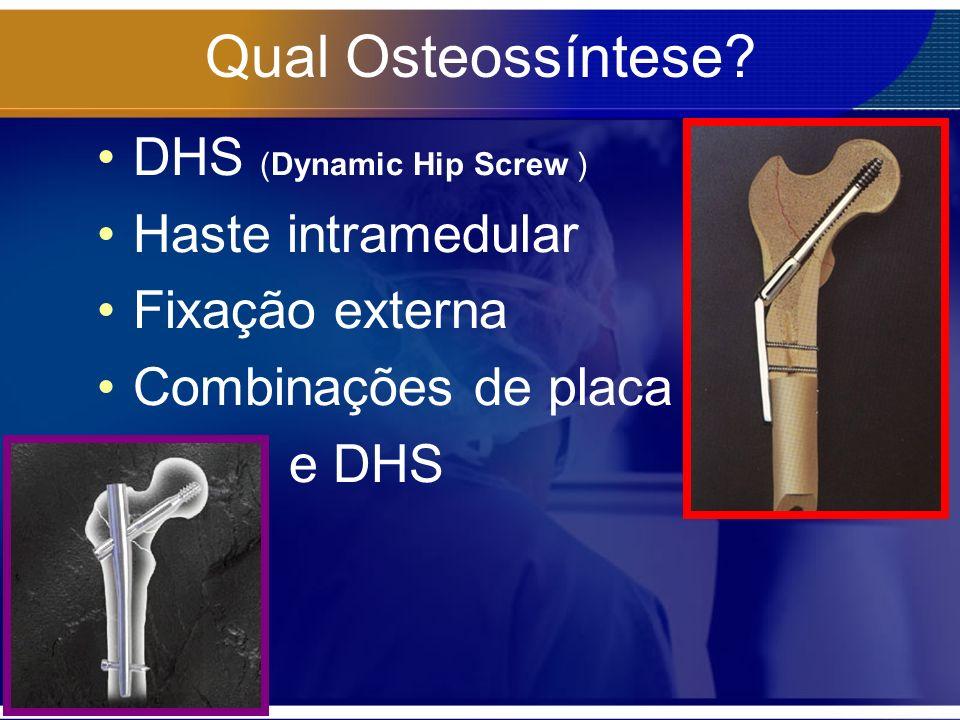 Qual Osteossíntese? DHS (Dynamic Hip Screw ) Haste intramedular Fixação externa Combinações de placa e DHS