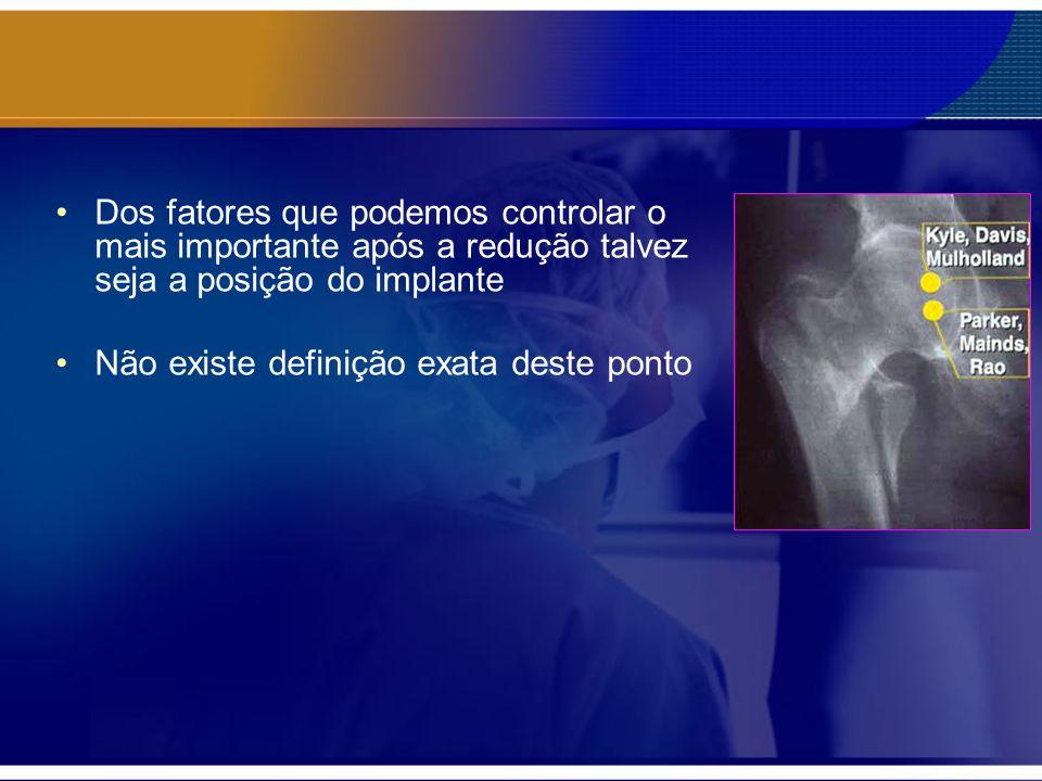 Dos fatores que podemos controlar o mais importante após a redução talvez seja a posição do implante Não existe definição exata deste ponto