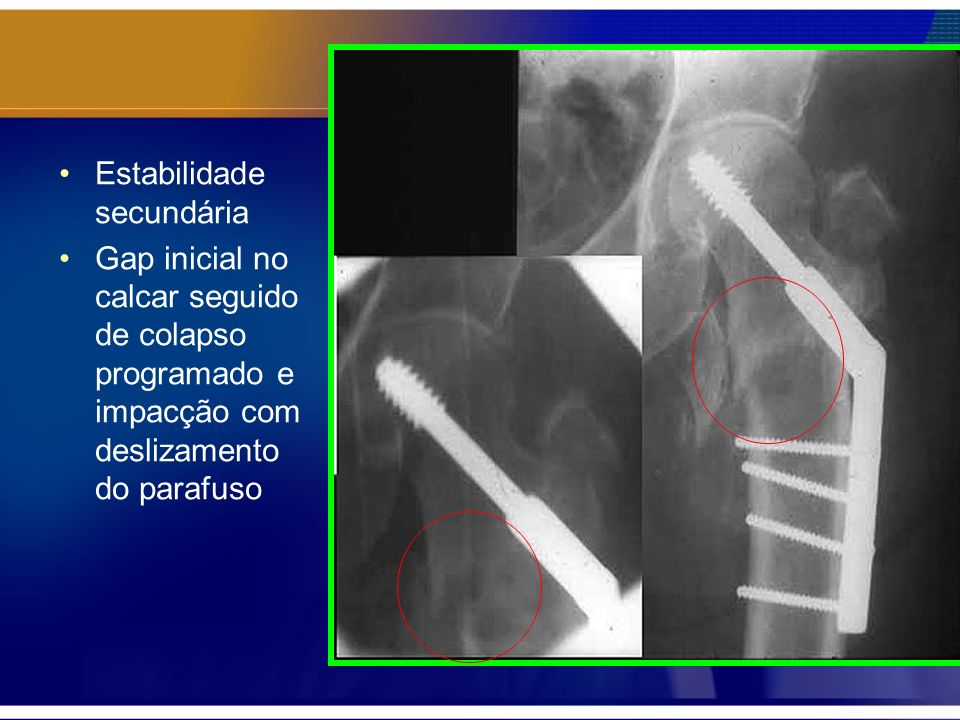 Estabilidade secundária Gap inicial no calcar seguido de colapso programado e impacção com deslizamento do parafuso