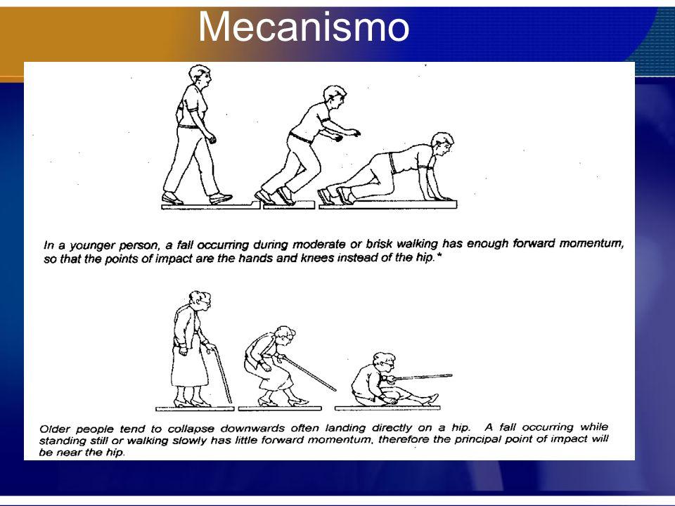 Apoio Os pacientes que tiveram carga permitida precocemente se autolimitavam devido a dor com uma carga de pouco mais da metade da força de apoio do membro saudável(51%) Postoperative Weight-Bearing after a Fracture of the Femoral Neck or an Intertrochanteric Fracture KENNETH J.