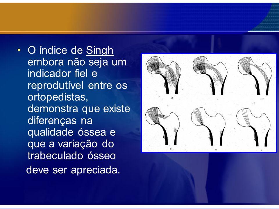 Note o padrão não homogêneo na cabeça femoral com diferentes densidades ósseas