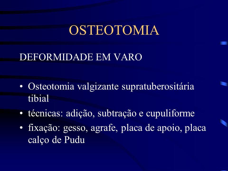 OSTEOTOMIA DEFORMIDADE EM VARO Osteotomia valgizante supratuberositária tibial técnicas: adição, subtração e cupuliforme fixação: gesso, agrafe, placa de apoio, placa calço de Pudu