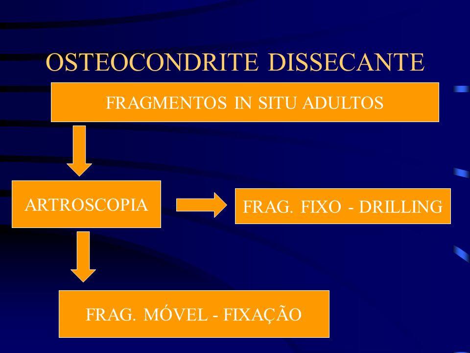 OSTEOCONDRITE DISSECANTE FRAGMENTOS IN SITU ADULTOS ARTROSCOPIA FRAG. FIXO - DRILLING FRAG. MÓVEL - FIXAÇÃO