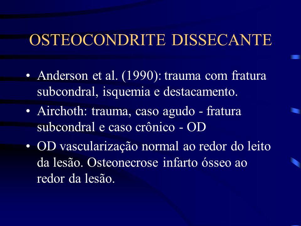 OSTEOCONDRITE DISSECANTE Anderson et al. (1990): trauma com fratura subcondral, isquemia e destacamento. Airchoth: trauma, caso agudo - fratura subcon