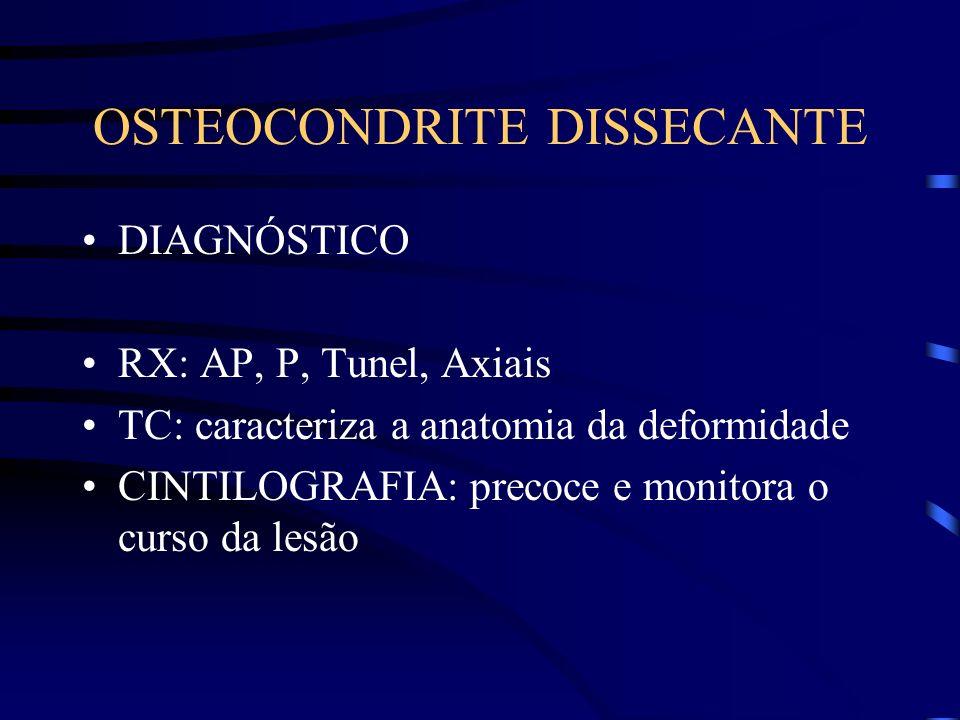 OSTEOCONDRITE DISSECANTE DIAGNÓSTICO RX: AP, P, Tunel, Axiais TC: caracteriza a anatomia da deformidade CINTILOGRAFIA: precoce e monitora o curso da l
