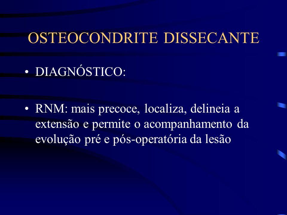 OSTEOCONDRITE DISSECANTE DIAGNÓSTICO: RNM: mais precoce, localiza, delineia a extensão e permite o acompanhamento da evolução pré e pós-operatória da