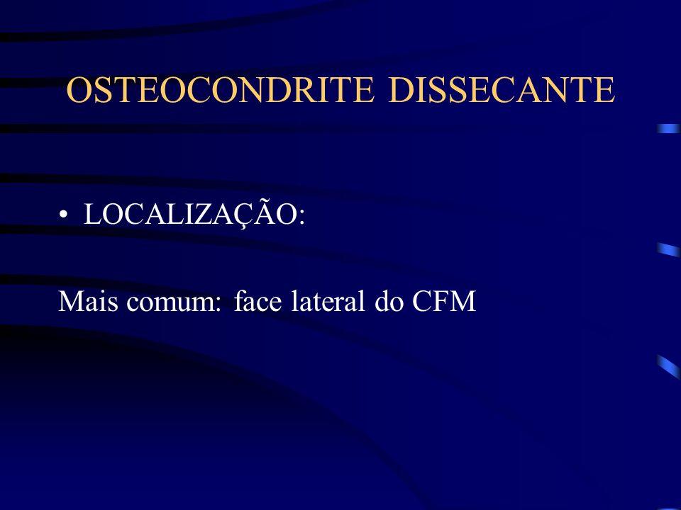 OSTEOCONDRITE DISSECANTE LOCALIZAÇÃO: Mais comum: face lateral do CFM