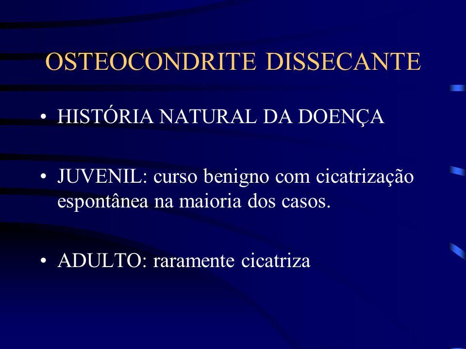 OSTEOCONDRITE DISSECANTE HISTÓRIA NATURAL DA DOENÇA JUVENIL: curso benigno com cicatrização espontânea na maioria dos casos. ADULTO: raramente cicatri