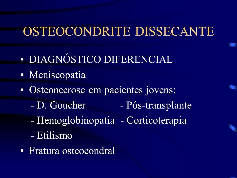 OSTEOCONDRITE DISSECANTE DIAGNÓSTICO DIFERENCIAL Meniscopatia Osteonecrose em pacientes jovens: - D. Goucher - Pós-transplante - Hemoglobinopatia - Co