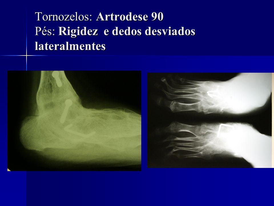 Tornozelos: Artrodese 90 Pés: Rigidez e dedos desviados lateralmentes