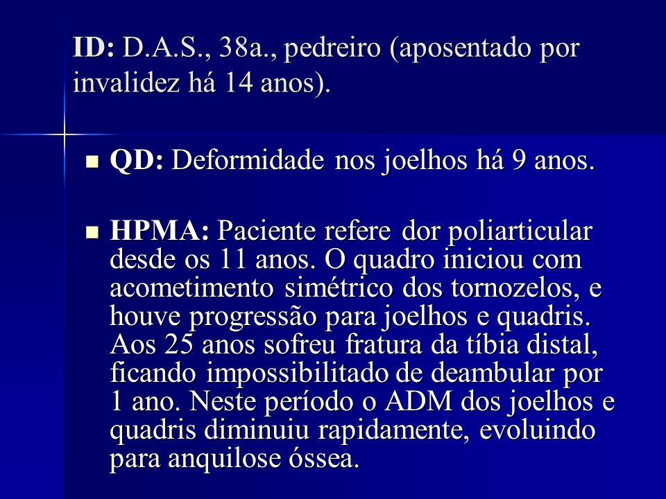 IC: ndn IC: ndn AP: -Artrodese tornozelos, 1986 - -Fratura tíbia distal, 1990 - -Artroplastia total quadril E, 2001 AP: -Artrodese tornozelos, 1986 - -Fratura tíbia distal, 1990 - -Artroplastia total quadril E, 2001 AF: Ndn.