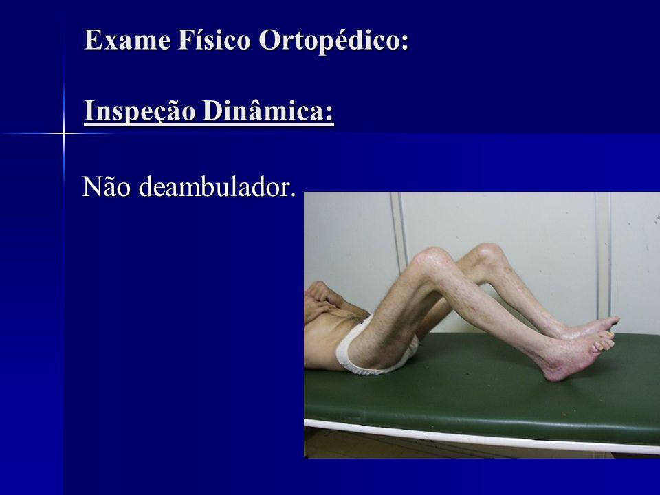Exame Físico Ortopédico: Inspeção Estática Pele fina, brilhante, com descamação nas pernas, joelhos e pés.