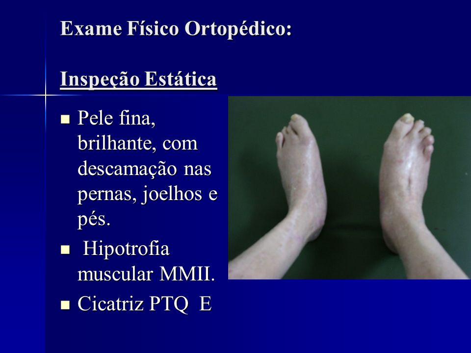 Exame Físico Ortopédico: Inspeção Estática Pele fina, brilhante, com descamação nas pernas, joelhos e pés. Pele fina, brilhante, com descamação nas pe