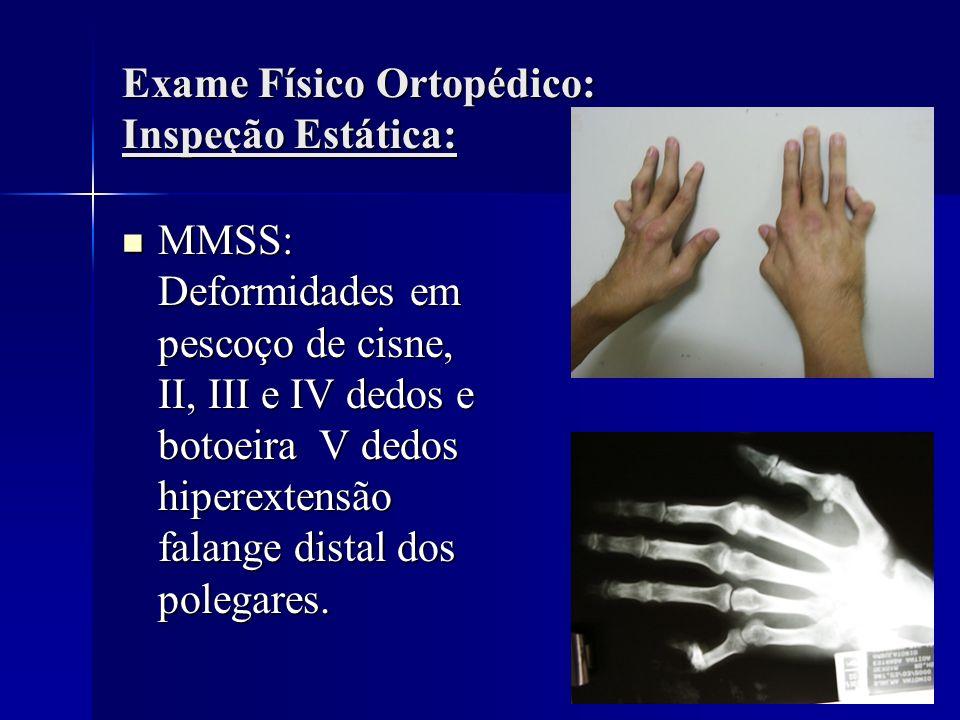 Exame Físico Ortopédico: Inspeção Estática: MMSS: Deformidades em pescoço de cisne, II, III e IV dedos e botoeira V dedos hiperextensão falange distal