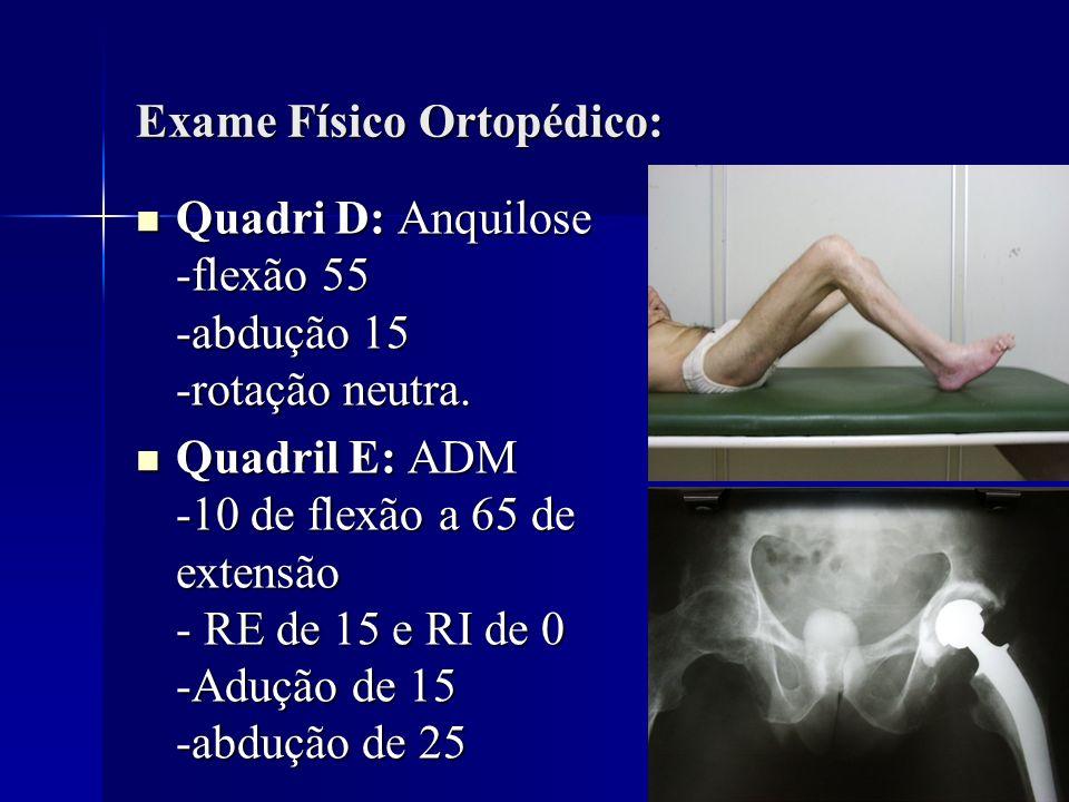 Exame Físico Ortopédico: Quadri D: Anquilose -flexão 55 -abdução 15 -rotação neutra. Quadri D: Anquilose -flexão 55 -abdução 15 -rotação neutra. Quadr