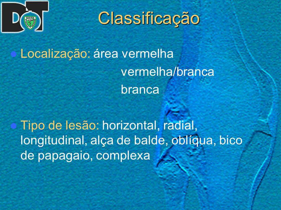 Classificação Localização: área vermelha vermelha/branca branca Tipo de lesão: horizontal, radial, longitudinal, alça de balde, oblíqua, bico de papag