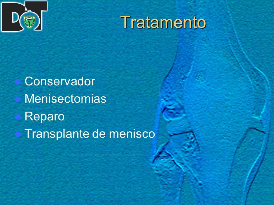 REPARO MENISCAL: RESULTADOS DA TÉCNICA ¨INSIDE-OUT¨ Material e Métodos O prontuário do paciente foi utilizado para acessar dados como: 1) idade na época da cirurgia 2) sexo 3) mecanismo de trauma 4) tempo decorrido entre a lesão e a cirurgia 5) data da cirurgia 6) menisco lesado 7) lesões associadas 8) cirurgias para lesões associadas 9) complicações 10) tratamento das complicações