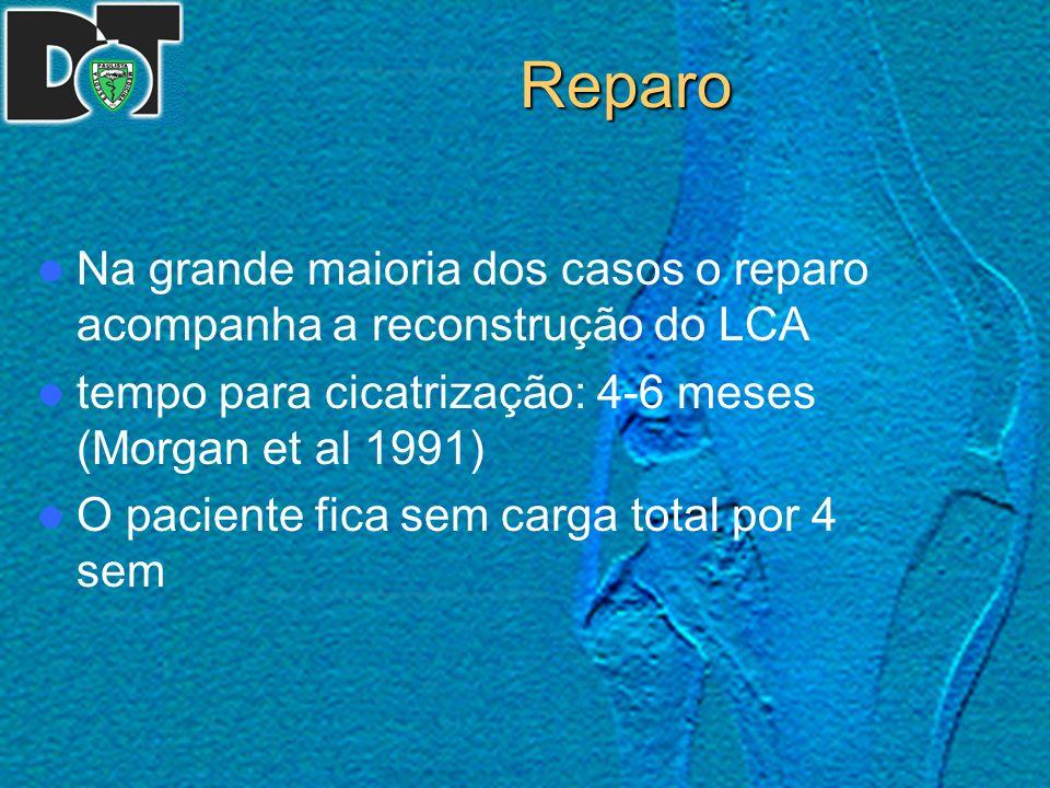 Reparo Na grande maioria dos casos o reparo acompanha a reconstrução do LCA tempo para cicatrização: 4-6 meses (Morgan et al 1991) O paciente fica sem