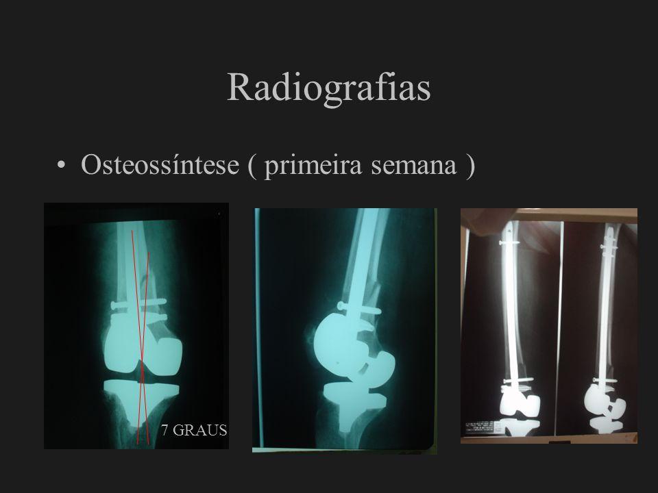 Radiografias Osteossíntese ( primeira semana ) 7 GRAUS