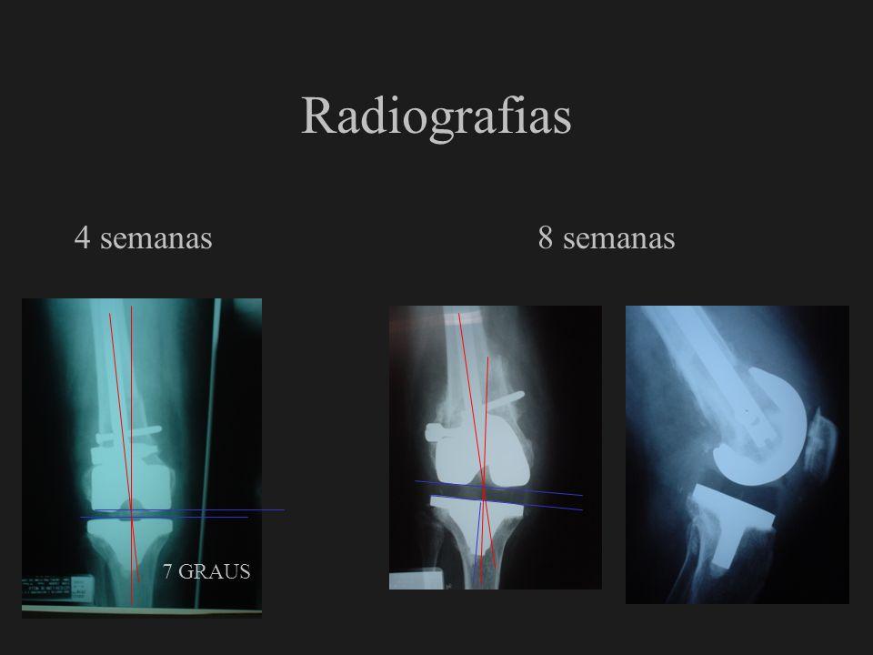Radiografias 4 semanas 8 semanas 7 GRAUS