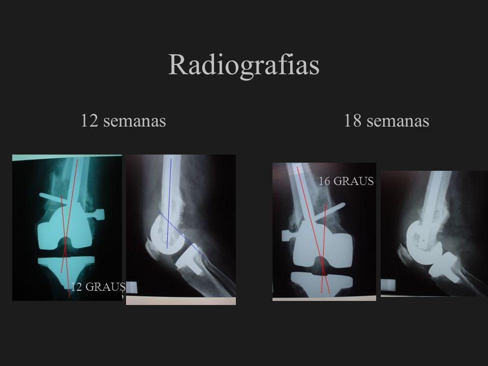Radiografias 12 semanas 18 semanas 7 GRAUS 16 GRAUS 12 GRAUS
