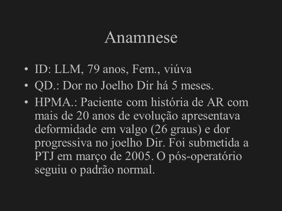 Anamnese ID: LLM, 79 anos, Fem., viúva QD.: Dor no Joelho Dir há 5 meses. HPMA.: Paciente com história de AR com mais de 20 anos de evolução apresenta