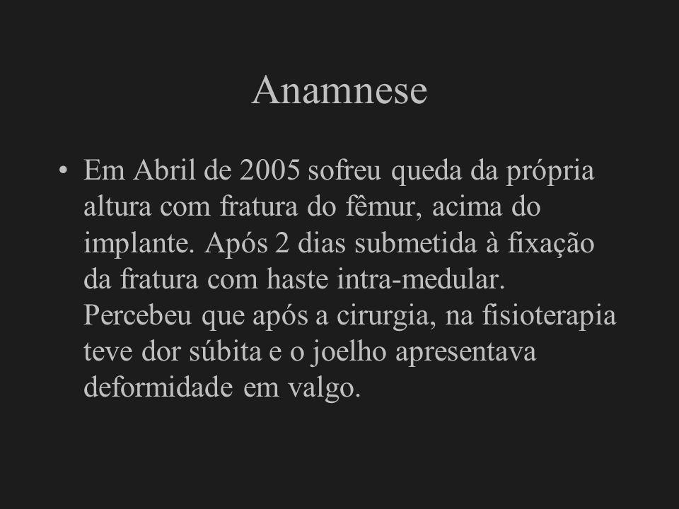 Anamnese Em Abril de 2005 sofreu queda da própria altura com fratura do fêmur, acima do implante. Após 2 dias submetida à fixação da fratura com haste