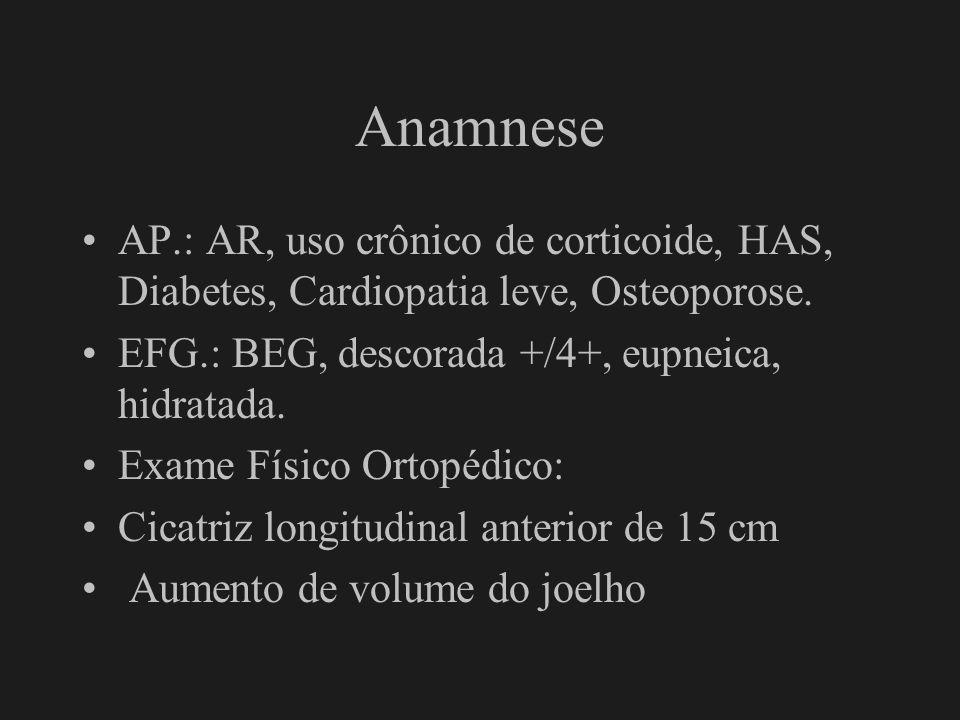 Anamnese AP.: AR, uso crônico de corticoide, HAS, Diabetes, Cardiopatia leve, Osteoporose. EFG.: BEG, descorada +/4+, eupneica, hidratada. Exame Físic