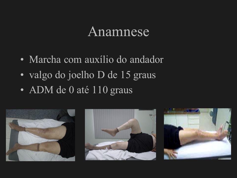 Anamnese Marcha com auxílio do andador valgo do joelho D de 15 graus ADM de 0 até 110 graus