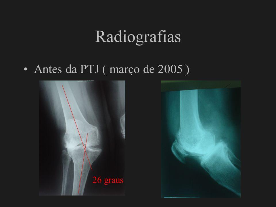 Radiografias Pós-operatório imediato PTJ 5 graus