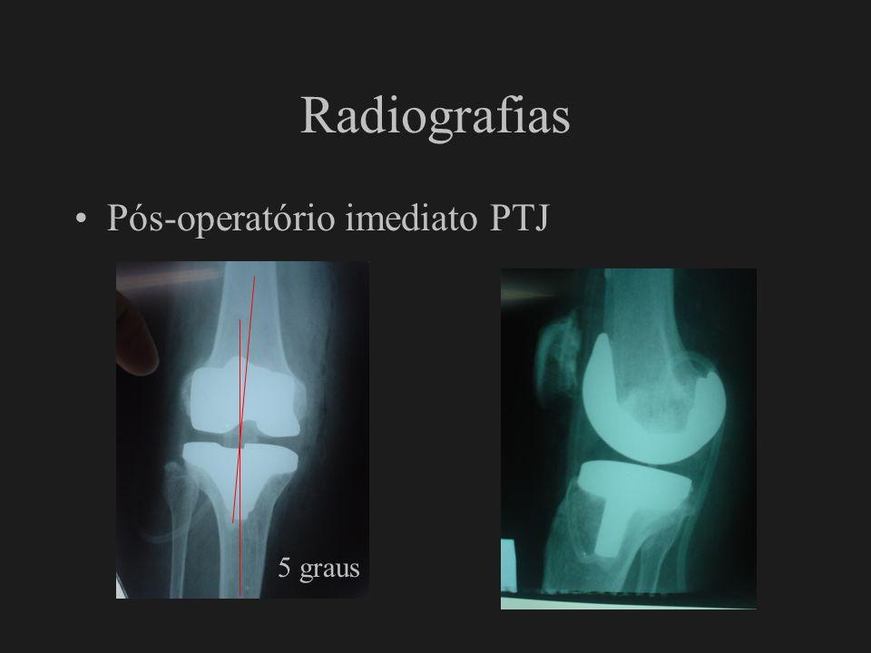 Radiografias Fratura