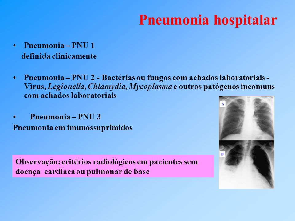 Pneumonia hospitalar Pneumonia – PNU 1 definida clinicamente Pneumonia – PNU 2 - Bactérias ou fungos com achados laboratoriais - Vìrus, Legionella, Chlamydia, Mycoplasma e outros patógenos incomuns com achados laboratoriais Pneumonia – PNU 3 Pneumonia em imunossuprimidos Observação: critérios radiológicos em pacientes sem doença cardíaca ou pulmonar de base