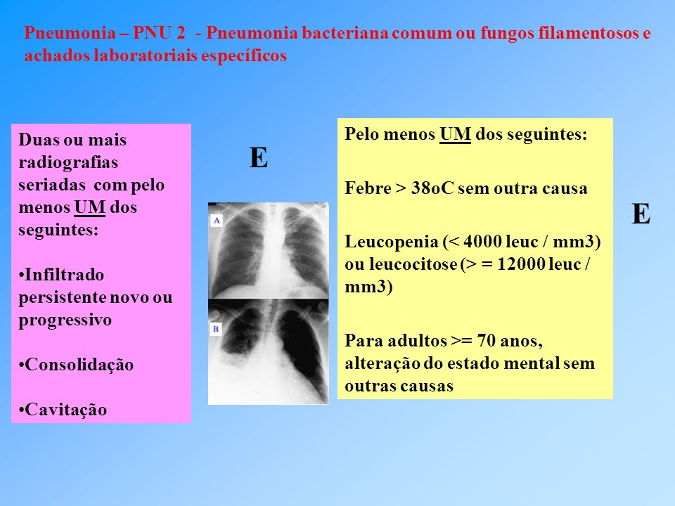 Pneumonia – PNU 2 - Pneumonia bacteriana comum ou fungos filamentosos e achados laboratoriais específicos Duas ou mais radiografias seriadas com pelo menos UM dos seguintes: Infiltrado persistente novo ou progressivo Consolidação Cavitação Pelo menos UM dos seguintes: Febre > 38oC sem outra causa Leucopenia ( = 12000 leuc / mm3) Para adultos >= 70 anos, alteração do estado mental sem outras causas E E