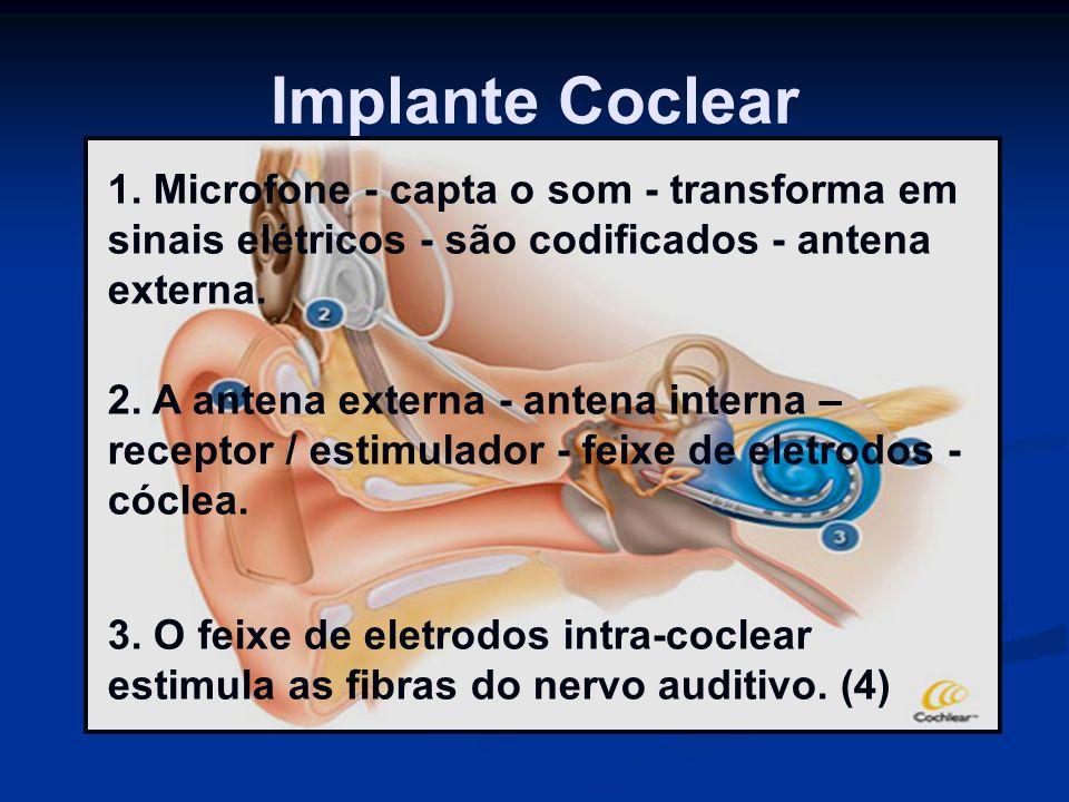 Implante Coclear 1. Microfone - capta o som - transforma em sinais elétricos - são codificados - antena externa. 2. A antena externa - antena interna