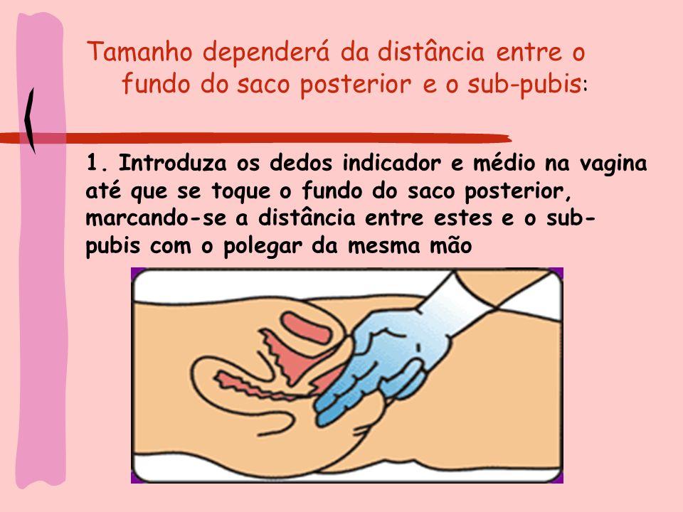 Tamanho dependerá da distância entre o fundo do saco posterior e o sub-pubis : 1. Introduza os dedos indicador e médio na vagina até que se toque o fu