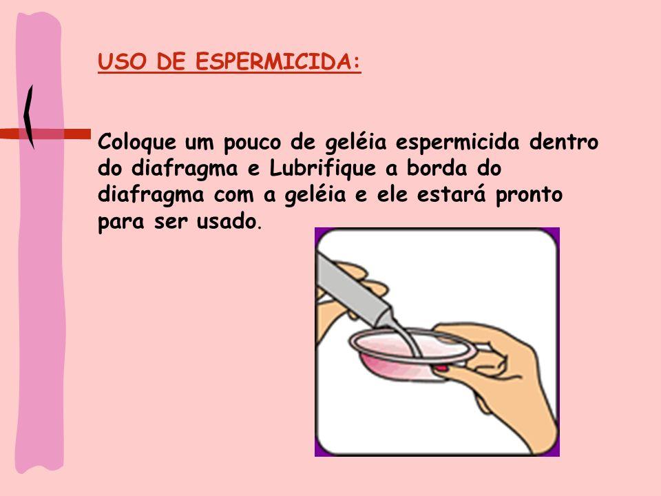 USO DE ESPERMICIDA: Coloque um pouco de geléia espermicida dentro do diafragma e Lubrifique a borda do diafragma com a geléia e ele estará pronto para