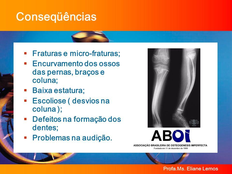 Profa.Ms. Eliane Lemos Conseqüências Fraturas e micro-fraturas; Encurvamento dos ossos das pernas, braços e coluna; Baixa estatura; Escoliose ( desvio
