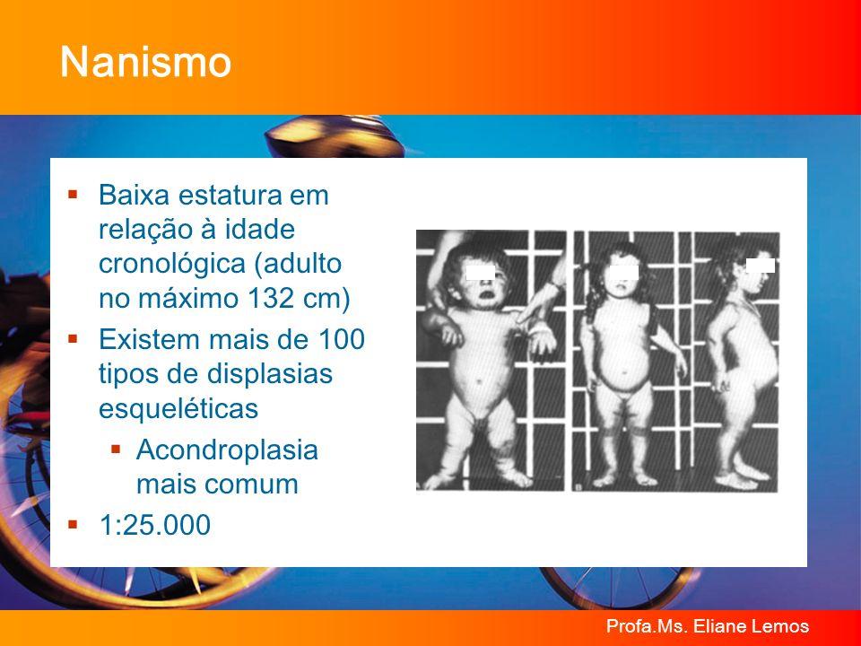 Profa.Ms. Eliane Lemos Nanismo Baixa estatura em relação à idade cronológica (adulto no máximo 132 cm) Existem mais de 100 tipos de displasias esquelé